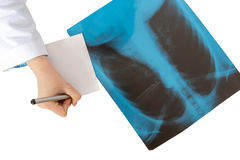 Doctor writing description of X-ray scan of human lungs Royalty Free Stock Photos