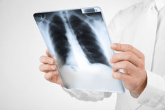 Doctor with x-ray Royalty Free Stock Photography