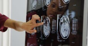 Doctores que revisan radiografías del cerebro fotos de archivo libres de regalías