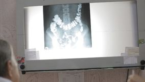 Doctors discuss patient x-ray image stock video