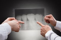 Doctors examining dental xray Royalty Free Stock Photos