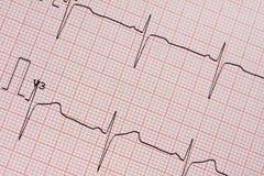 Document imprimé d'électrocardiogramme Photos libres de droits