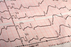 Document imprimé de l'électrocardiogramme ECG Photos libres de droits