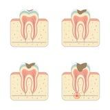Doença da deterioração de dente ilustração stock