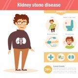 Doença da pedra de rim Infographics Vetor cartoon ilustração do vetor