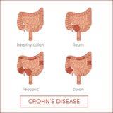 A doença de Crohn Imagem de Stock