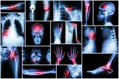 Doença do múltiplo do raio X da coleção foto de stock