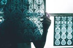 Doença do ` s de Alzheimer em MRI fotografia de stock royalty free