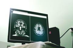 Doença e demência pequenas da embarcação no filme MRI fotografia de stock