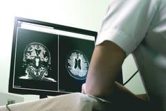 Doença e demência pequenas da embarcação no filme MRI imagens de stock royalty free