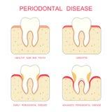 Doença peridental do dente, Foto de Stock Royalty Free