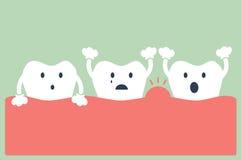 Doença peridental do dente ilustração stock