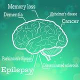 Doenças de cérebro humano Imagem de Stock