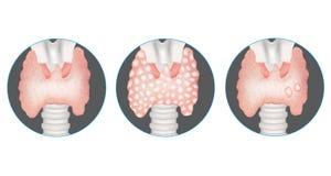 Doenças de glândula do tiroide ilustração do vetor
