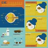 Doenças de olho ajustadas ilustração stock