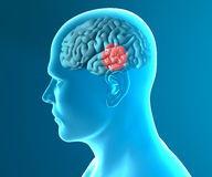 Doenças degenerativos Parkinson do cérebro Fotos de Stock