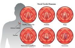Doenças do cabo vocal Imagens de Stock