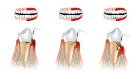 Doenças do esquema dental dos dentes. Alveolysis Foto de Stock Royalty Free
