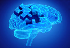 Doença da demência e uma perda de função e de memórias do cérebro Imagens de Stock