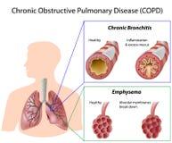 Doença pulmonaa obstrutiva crônica Imagens de Stock