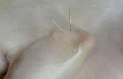 Dog Acupuncture. Acupuncture treatment of white dog. Elbow region Royalty Free Stock Photo