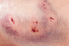 Dog bite wound Royalty Free Stock Photography