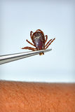 Dog Tick Removal Royalty Free Stock Image