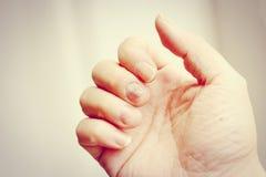 Doigt avec l'onychomycosis Un champignon d'ongle de pied - foyer mou Photos libres de droits