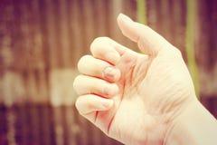 Doigt avec l'onychomycosis Un champignon d'ongle de pied - foyer mou Photographie stock