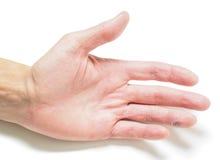 Doigt avec la coupe infectée, en main avec la peau sèche photographie stock