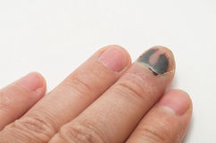 Doigt moyen avec l'ongle meurtri photos stock