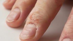Doigts d'un homme avec le psoriasis et l'eczema Un plan rapproché de l'épluchage de peau clips vidéos