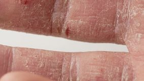 Doigts d'un homme avec le psoriasis et l'eczema Un plan rapproché de l'épluchage de peau banque de vidéos