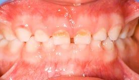 Dojni zęby Obrazy Royalty Free
