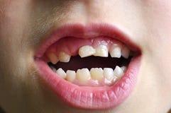 Dojni zęby Fotografia Royalty Free