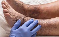 Doktor überprüft den alten weiblichen Patienten des Beines für Krampfadern Lizenzfreie Stockfotos