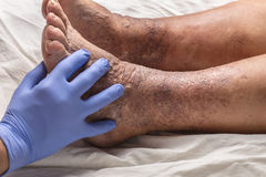 Doktor überprüft den alten weiblichen Patienten des Beines für Krampfadern Stockbild