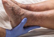 Doktor überprüft den alten weiblichen Patienten des Beines für Krampfadern Lizenzfreie Stockfotografie