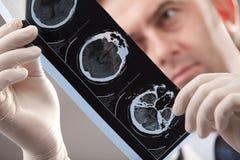 Doktor überprüft Röntgenstrahl Lizenzfreie Stockbilder