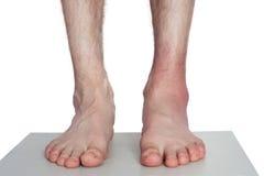 Doktor Bandaging Man Ankle royaltyfri foto