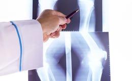 Doktor, der Röntgenstrahlen der Hand studiert Lizenzfreie Stockfotos