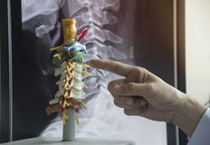 Doktor, der zervikales Dornmodell demonstriert lizenzfreies stockfoto