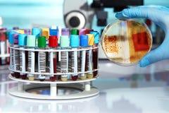 Doktor med tillväxt av kolonier av bakterier i plommoner för kulturmedel arkivbilder