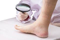 Doktor mit Lupe und dem betroffenen Bein Lizenzfreie Stockfotografie