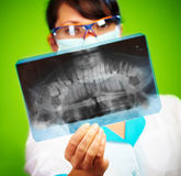 Doktor mit Röntgenstrahl Stockfotografie