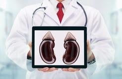 Doktor mit Stethoskop in einem Krankenhaus Nieren auf der Tablette lizenzfreie stockfotos