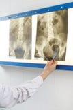Doktor som ser röntgenstrålefotoet av bäcken Royaltyfri Fotografi
