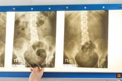 Doktor som ser röntgenstrålefotoet av bäcken Arkivbild