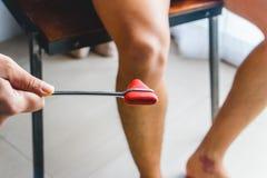 Doktor som testar patellar reflex eller knä-fjant reflex arkivfoto