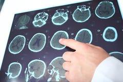 Doktorn identifierar på fragmentet av CT-bilden. Arkivbilder